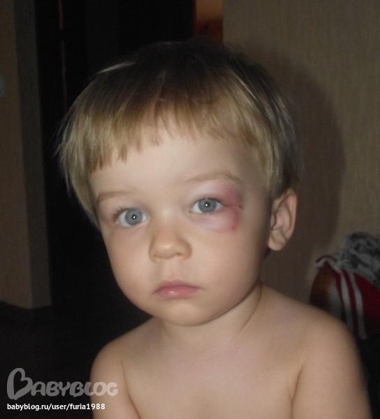 У ребенка сильный ушиб шишка на лбу что делать 114