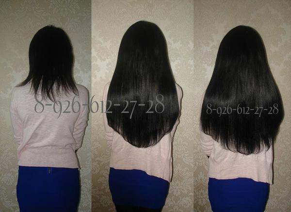 Последствия после пересадки волос