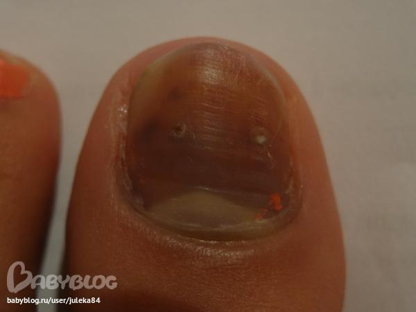 Уксусная кислота при лечении ногтевого грибка