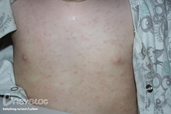 розелла болезнь фото