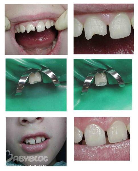 Что сделать вместо коронок на зубы