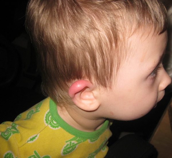 У ребенка опухло ухо