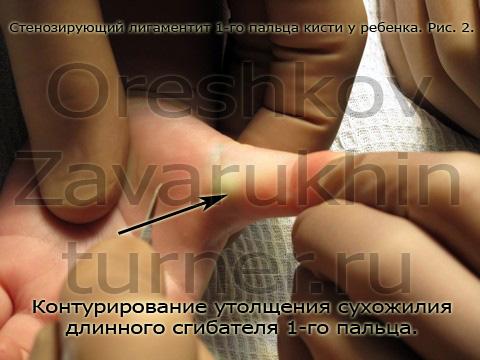 Операция ребнку при стенозирующем легаментите