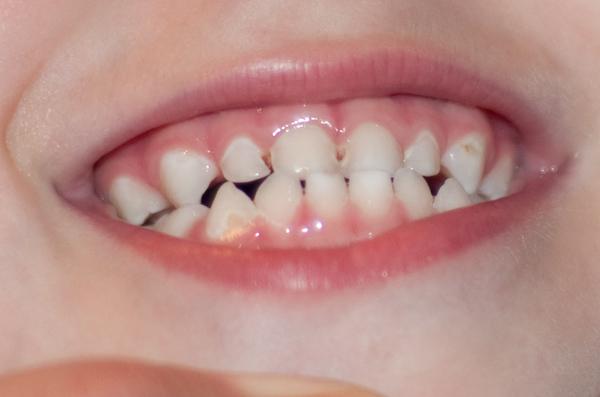 Что делать когда сошла эмаль с зубов