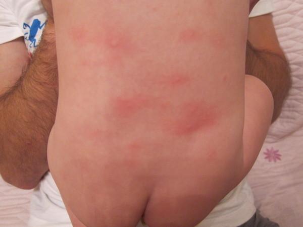Пятна по телу грудного ребенка фото