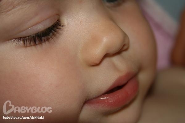 Шрам у ребенка фото