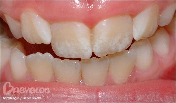 Что такое фторирование зубов у взрослых