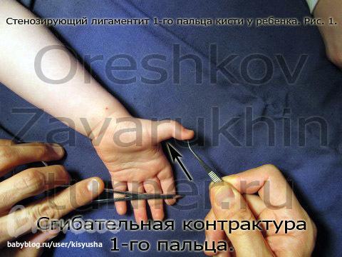 Артрит Артроз Электрофорез Лечение