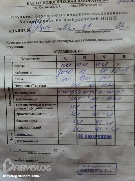 russkie-zhenshini-vse-prostitutki